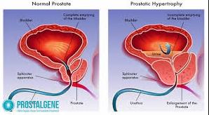 Prostalgene - ljekarna - tablete - forum