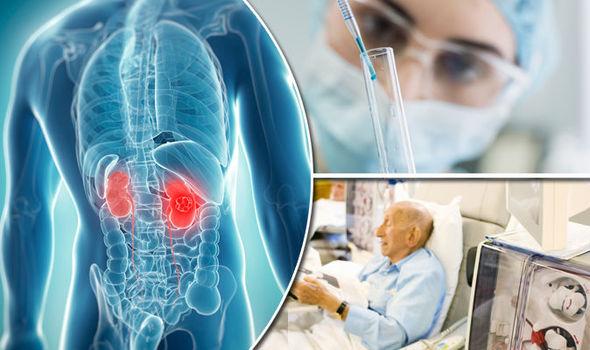 Les résultats de l'étude ont indiqué Cancer du rein une augmentation