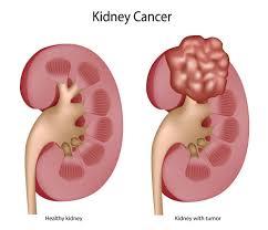 Le cancer du rein bonne nutrition affecte généralement les individus entre 50 et 70 ans