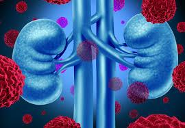 Le est un alimentation saine cancer qui survient relativement souvent.