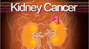 Le nombre traitement minceur de cas de cancer du rein augmente chaque année.