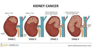 Le cancer du rein métastatique avancé nécessite un traitement systémique, Kidney Cancer Association