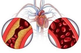 Remi bloston - za hipertenziju - za mršavljenje - ljekarna - cijena - Amazon