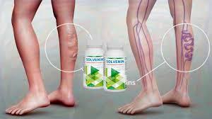 Solvenin - za varikozne vene - forum - test - gel